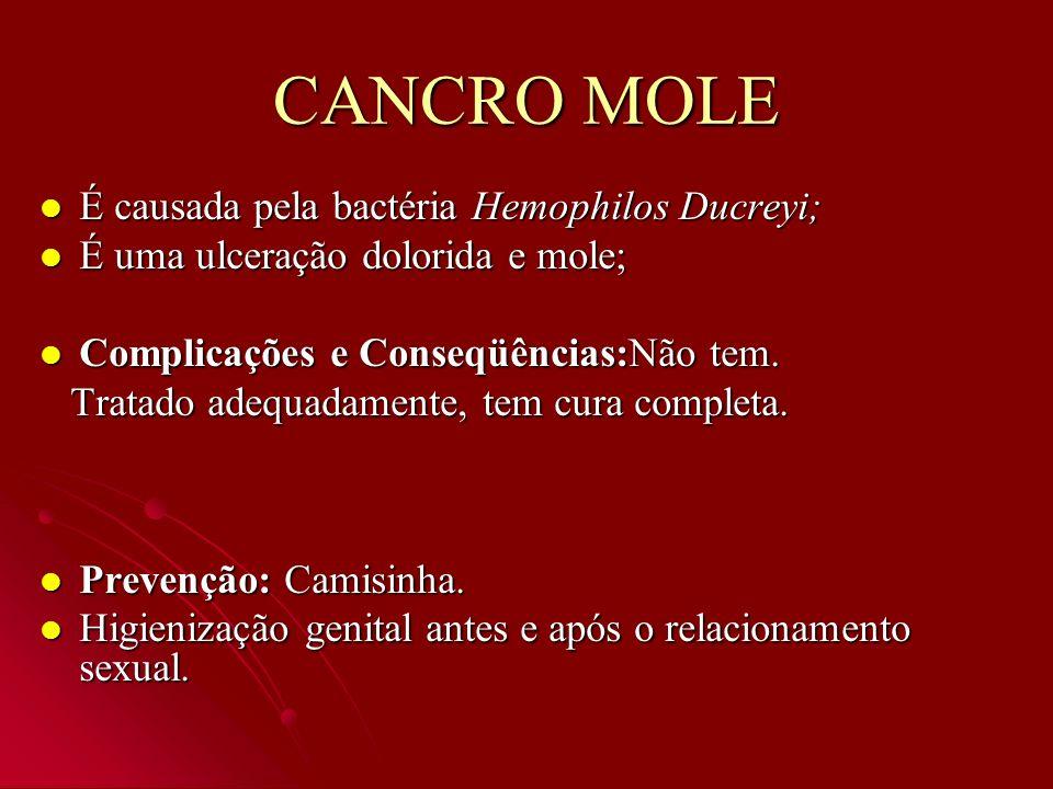 CANCRO MOLE É causada pela bactéria Hemophilos Ducreyi; É causada pela bactéria Hemophilos Ducreyi; É uma ulceração dolorida e mole; É uma ulceração d