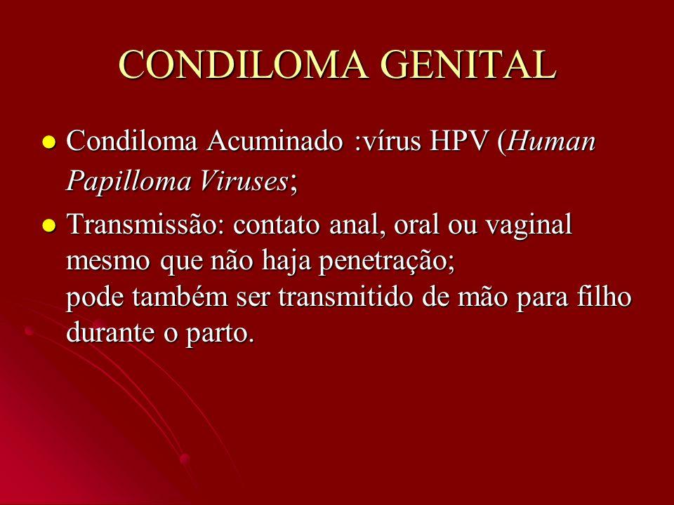 CONDILOMA GENITAL Condiloma Acuminado :vírus HPV (Human Papilloma Viruses ; Condiloma Acuminado :vírus HPV (Human Papilloma Viruses ; Transmissão: con