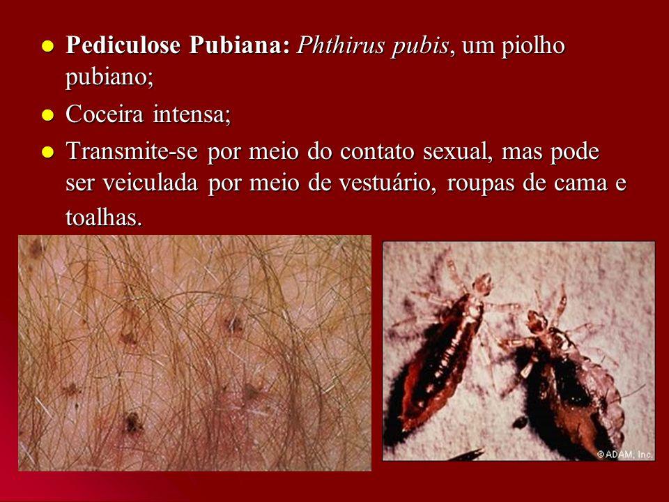 Pediculose Pubiana: Phthirus pubis, um piolho pubiano; Pediculose Pubiana: Phthirus pubis, um piolho pubiano; Coceira intensa; Coceira intensa; Transm