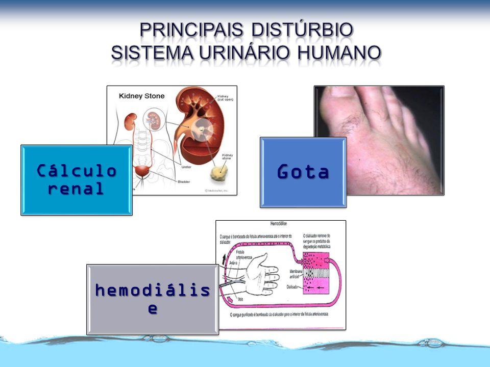 Cálculo renal Gota hemodiális e