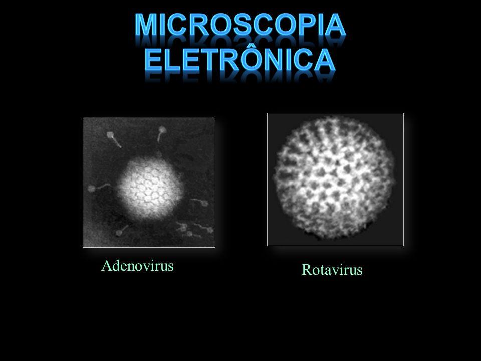 Adenovirus Rotavirus (courtesy of Linda Stannard, University of Cape Town, S.A.)