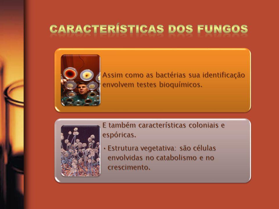 Assim como as bactérias sua identificação envolvem testes bioquímicos. E também características coloniais e espóricas. Estrutura vegetativa: são célul
