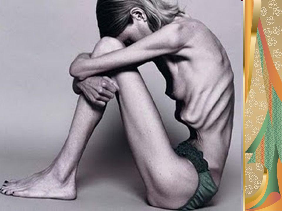 o que é bulimia É o transtorno alimentar caracterizado por episódios recorrentes de orgias alimentares , no qual o paciente come num curto espaço de tempo grande quantidade de alimento como se estivesse com muita fome.