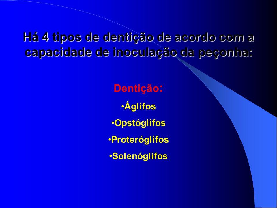 Há 4 tipos de dentição de acordo com a capacidade de inoculação da peçonha: Dentição : Áglifos Opstóglifos Proteróglifos Solenóglifos