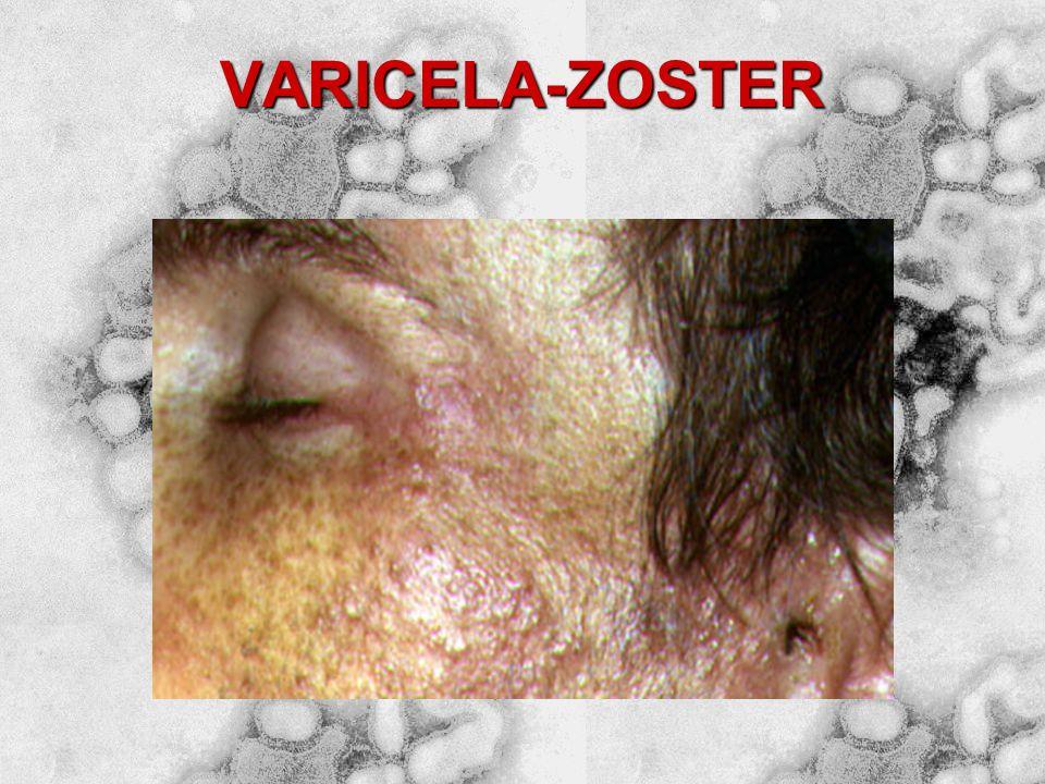 Varicela (catapora) Zoster (cobreiro)