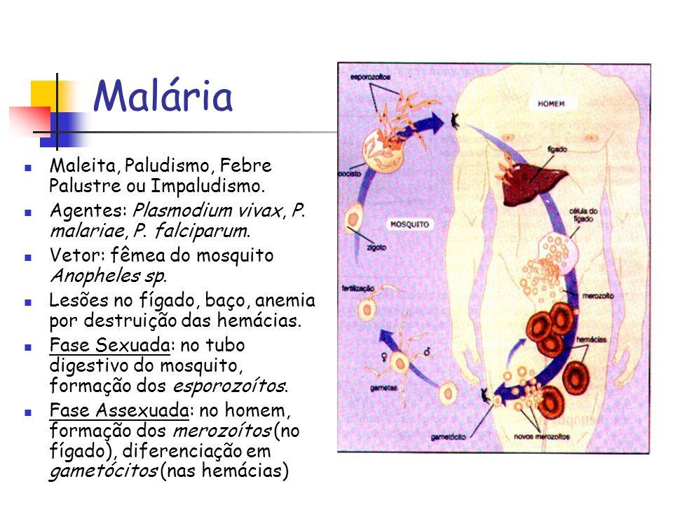 Malária Maleita, Paludismo, Febre Palustre ou Impaludismo.