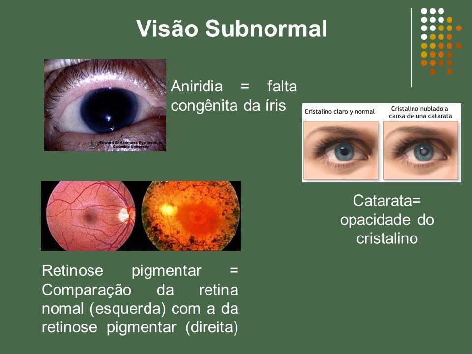 Visão Subnormal Catarata= opacidade do cristalino Aniridia = falta congênita da íris Retinose pigmentar = Comparação da retina nomal (esquerda) com a