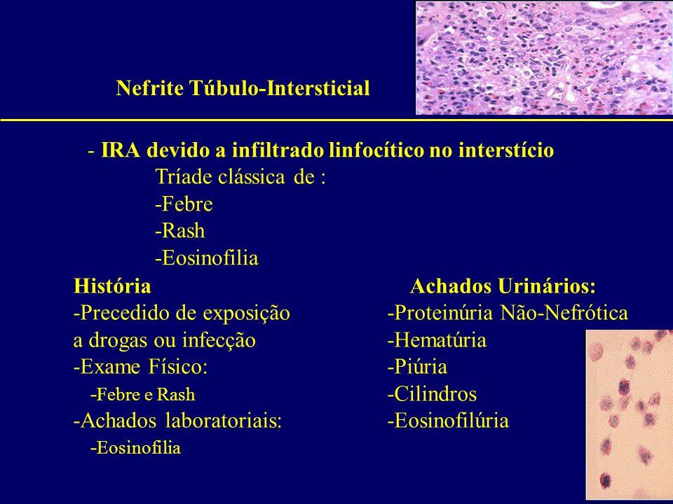 Nefrite Túbulo-Intersticial - IRA devido a infiltrado linfocítico no interstício Tríade clássica de : -Febre -Rash -Eosinofilia HistóriaAchados Urinár