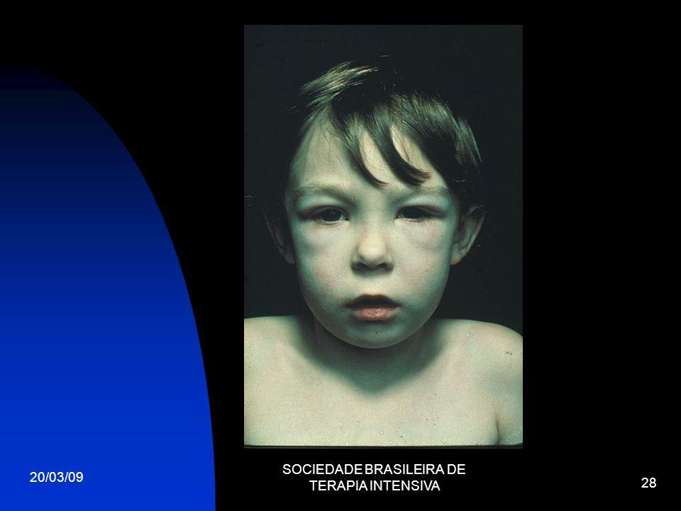 20/03/09 SOCIEDADE BRASILEIRA DE TERAPIA INTENSIVA 28
