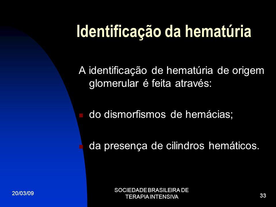 20/03/09 SOCIEDADE BRASILEIRA DE TERAPIA INTENSIVA 33 Identificação da hematúria A identificação de hematúria de origem glomerular é feita através: do