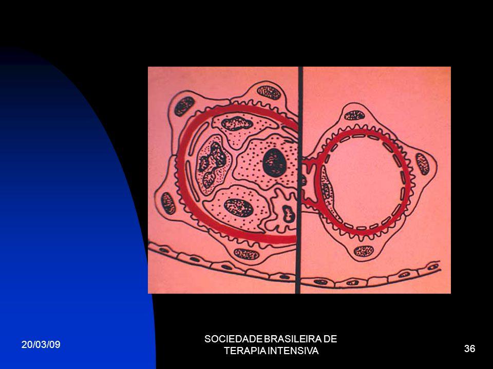 20/03/09 SOCIEDADE BRASILEIRA DE TERAPIA INTENSIVA 36