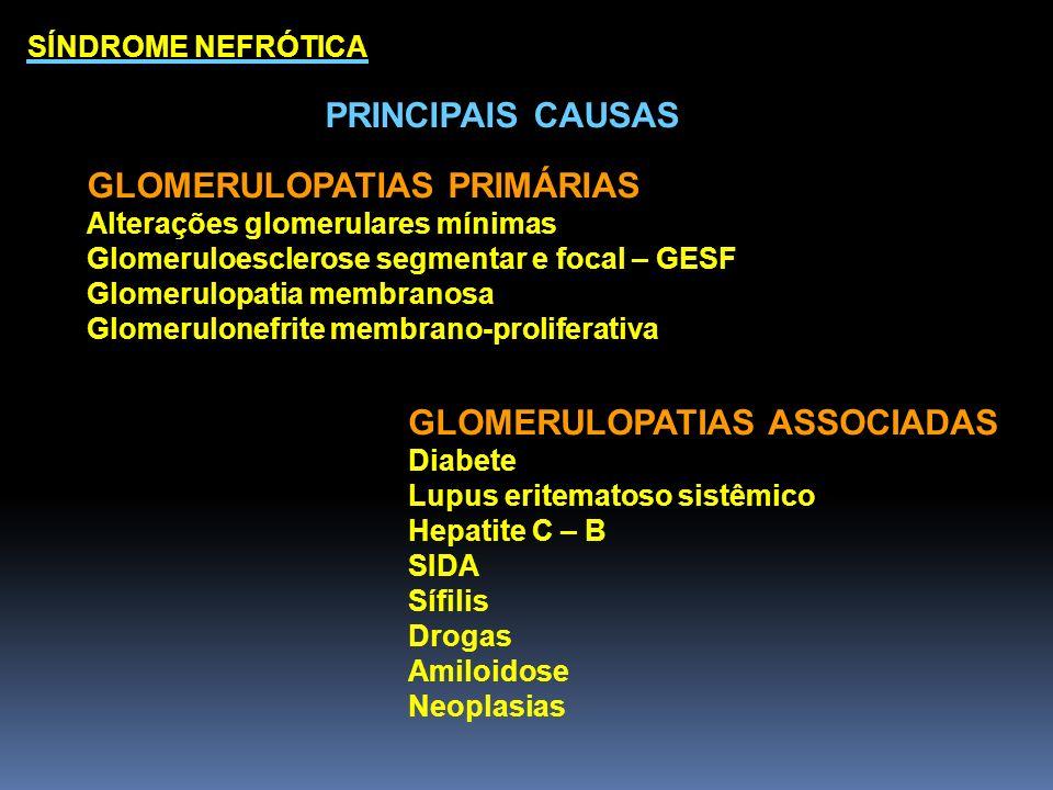 SÍNDROME NEFRÓTICA PRINCIPAIS CAUSAS GLOMERULOPATIAS PRIMÁRIAS Alterações glomerulares mínimas Glomeruloesclerose segmentar e focal – GESF Glomerulopa