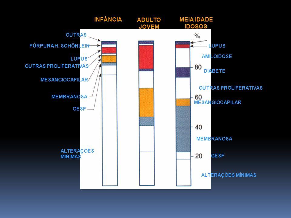 Figura da doenças por faixa etária OUTRAS PÚRPURA H. SCHÖNLEIN LUPUS OUTRAS PROLIFERATIVAS MESANGIOCAPILAR MEMBRANOSA GESF ALTERAÇÕES MÍNIMAS INFÂNCIA