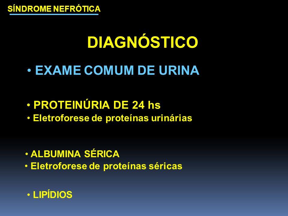 SÍNDROME NEFRÓTICA DIAGNÓSTICO EXAME COMUM DE URINA PROTEINÚRIA DE 24 hs Eletroforese de proteínas urinárias ALBUMINA SÉRICA Eletroforese de proteínas