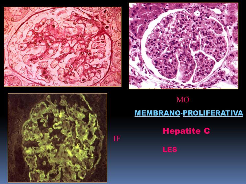 FIGURA IF MO Hepatite C LES MEMBRANO-PROLIFERATIVA