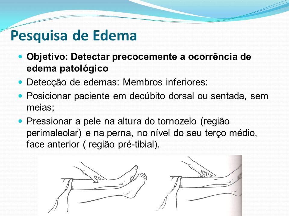 Pesquisa de Edema Objetivo: Detectar precocemente a ocorrência de edema patológico Detecção de edemas: Membros inferiores: Posicionar paciente em decú