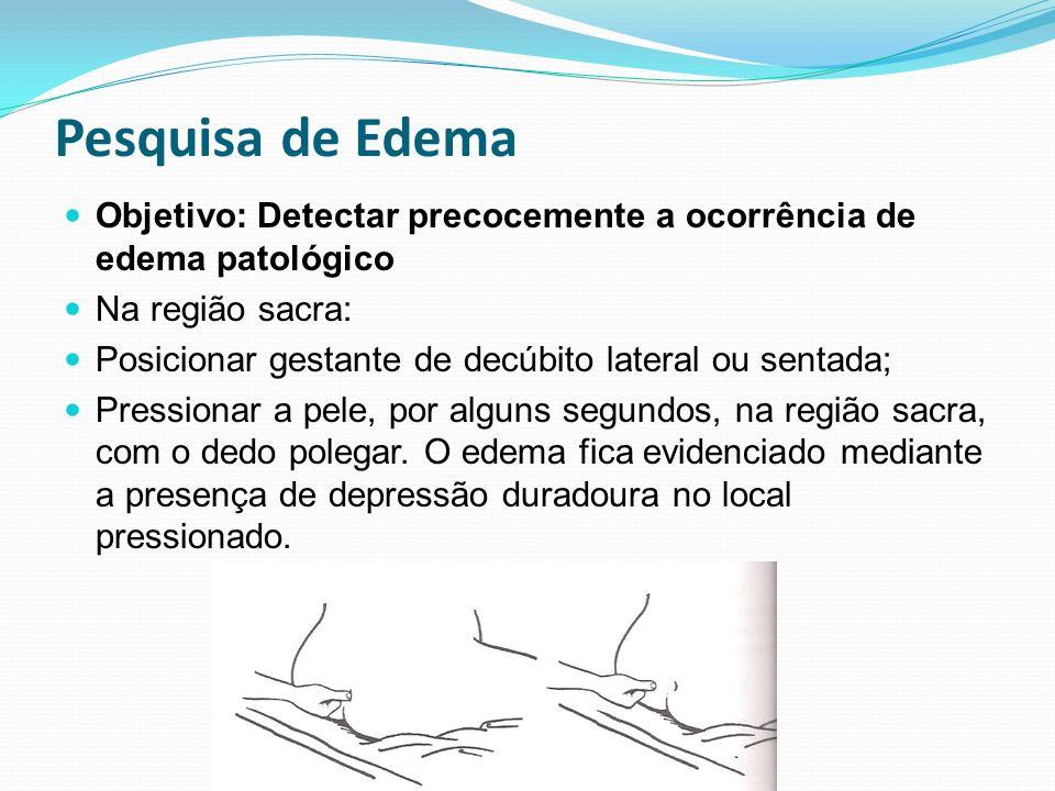 Pesquisa de Edema Objetivo: Detectar precocemente a ocorrência de edema patológico Na região sacra: Posicionar gestante de decúbito lateral ou sentada