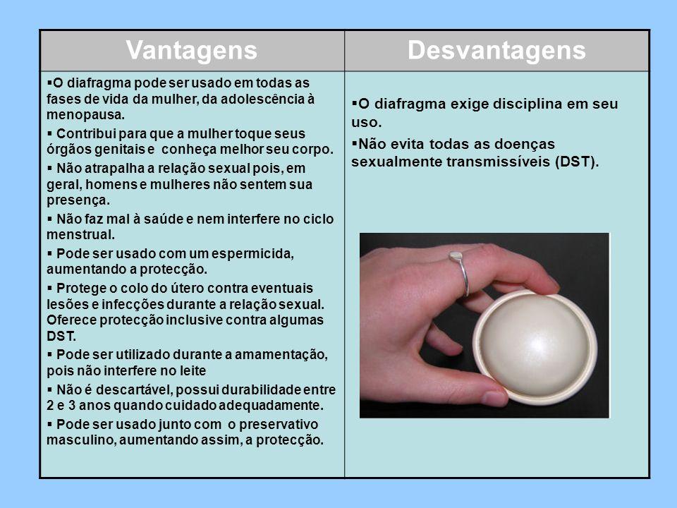 VantagensDesvantagens O diafragma pode ser usado em todas as fases de vida da mulher, da adolescência à menopausa. Contribui para que a mulher toque s