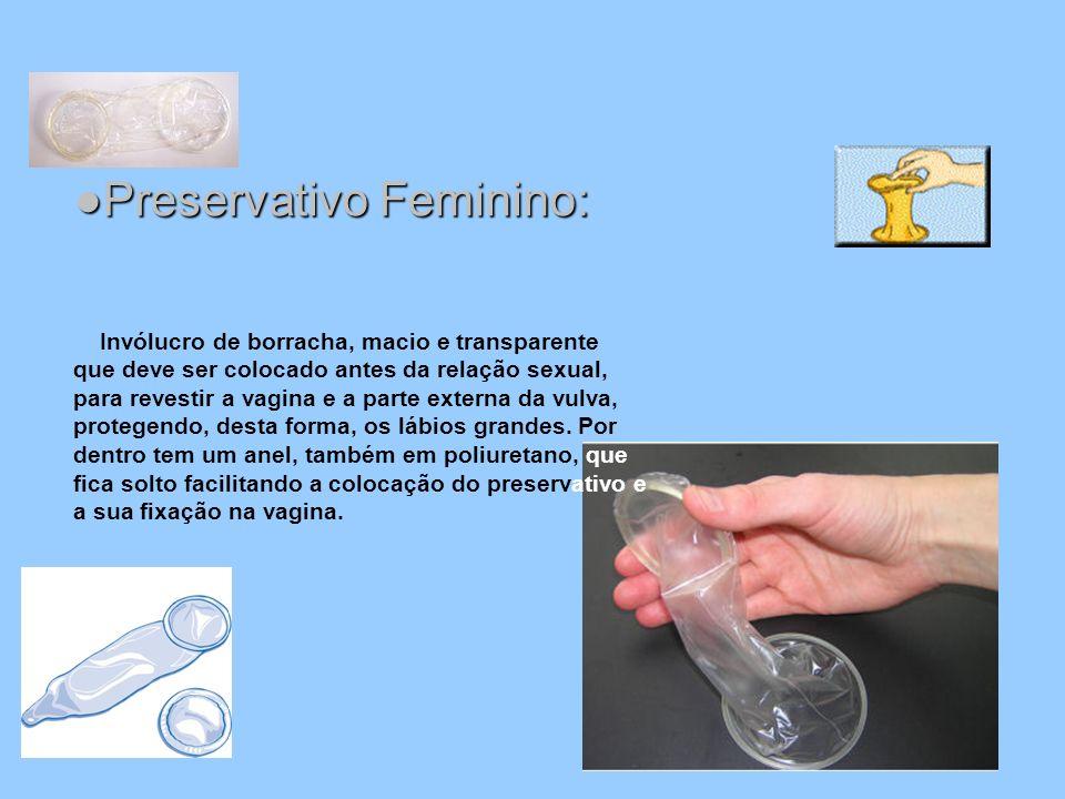 Preservativo Feminino:Preservativo Feminino: Invólucro de borracha, macio e transparente que deve ser colocado antes da relação sexual, para revestir
