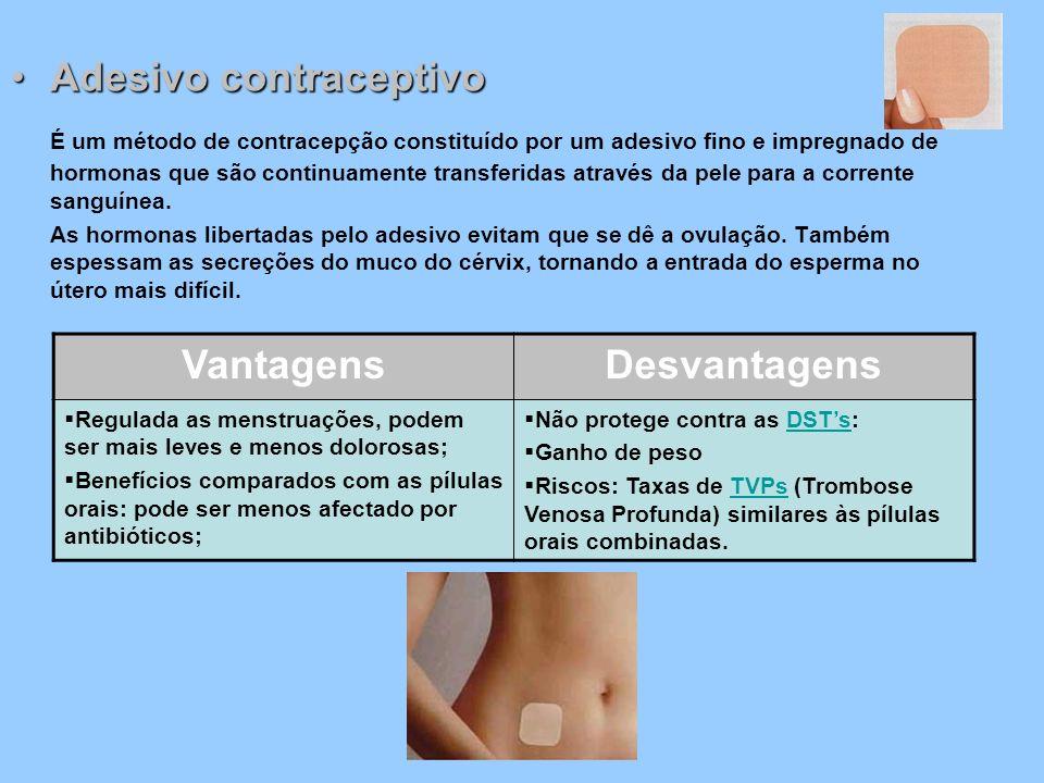 Adesivo contraceptivoAdesivo contraceptivo É um método de contracepção constituído por um adesivo fino e impregnado de hormonas que são continuamente