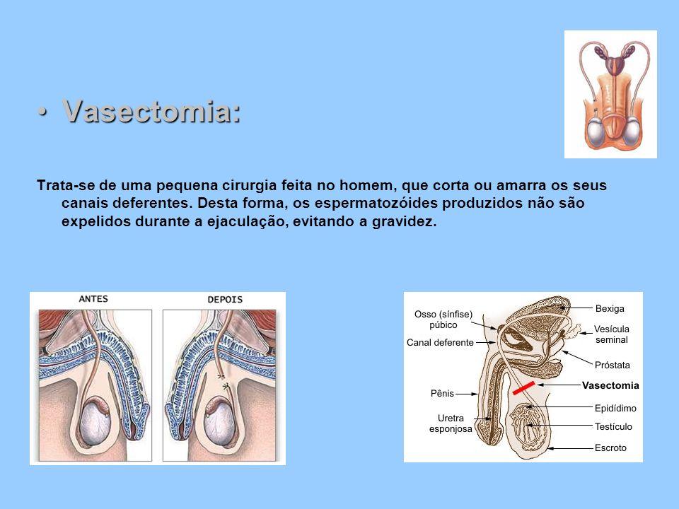 Vasectomia:Vasectomia: Trata-se de uma pequena cirurgia feita no homem, que corta ou amarra os seus canais deferentes. Desta forma, os espermatozóides