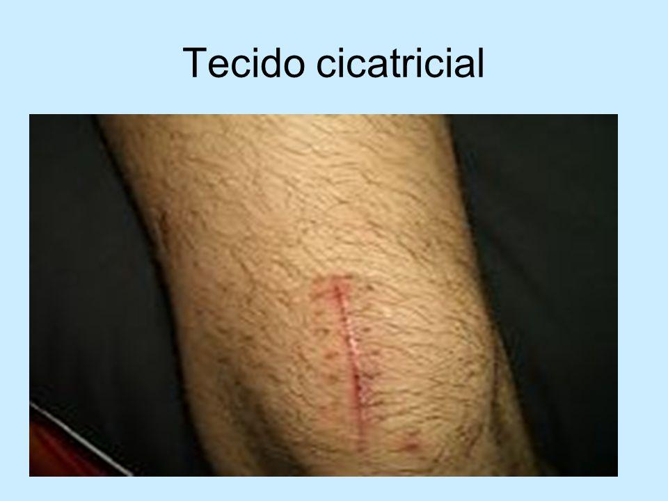 Tecido cicatricial