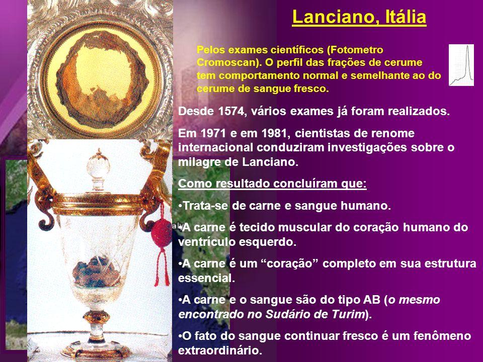 Lanciano, Itália Há 700 anos atrás, um outro padre também duvidava que a eucaristia pudesse ser o corpo e o sangue de Cristo. Afinal, tudo o que ele v