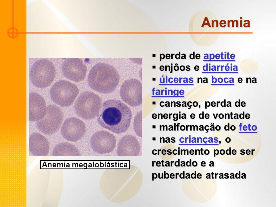 Anemia megaloblástica perda de apetite perda de apetiteapetite enjôos e diarréia enjôos e diarréiadiarréia úlceras na boca e na faringe úlceras na boc