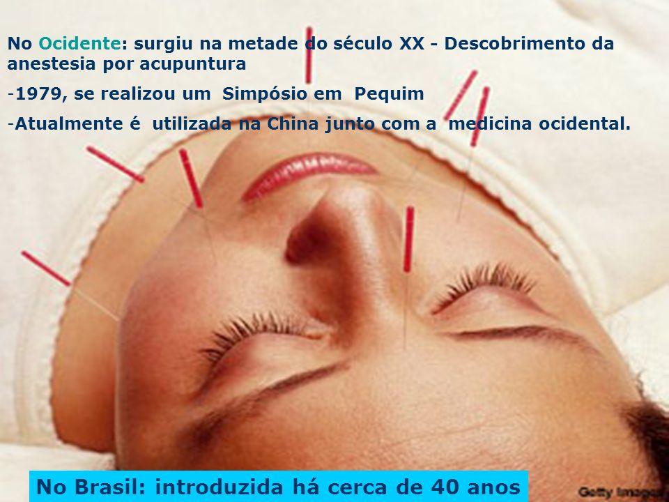 No Ocidente: surgiu na metade do século XX - Descobrimento da anestesia por acupuntura -1979, se realizou um Simpósio em Pequim -Atualmente é utilizad