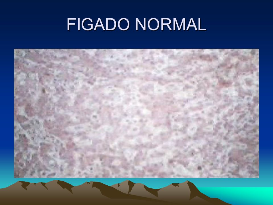 FIGADO NORMAL
