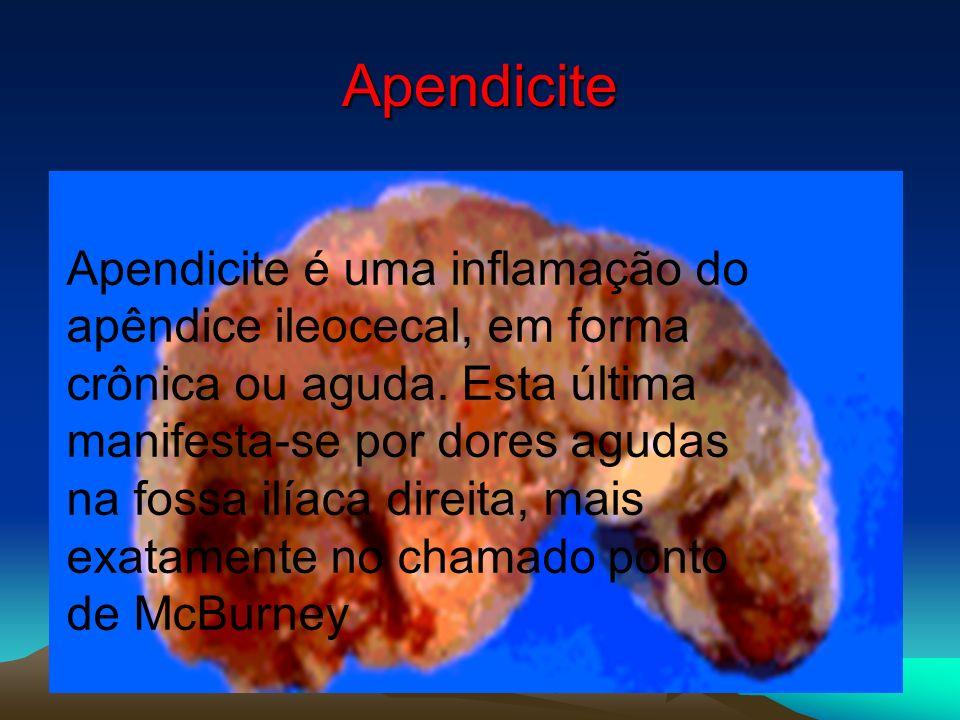 Apendicite Apendicite é uma inflamação do apêndice ileocecal, em forma crônica ou aguda. Esta última manifesta-se por dores agudas na fossa ilíaca dir