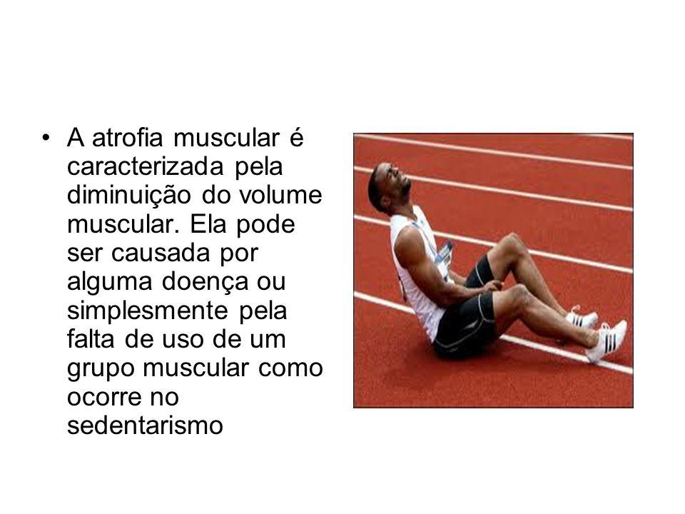 A atrofia muscular é caracterizada pela diminuição do volume muscular. Ela pode ser causada por alguma doença ou simplesmente pela falta de uso de um