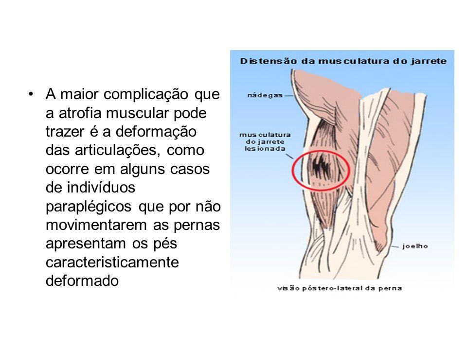 A maior complicação que a atrofia muscular pode trazer é a deformação das articulações, como ocorre em alguns casos de indivíduos paraplégicos que por