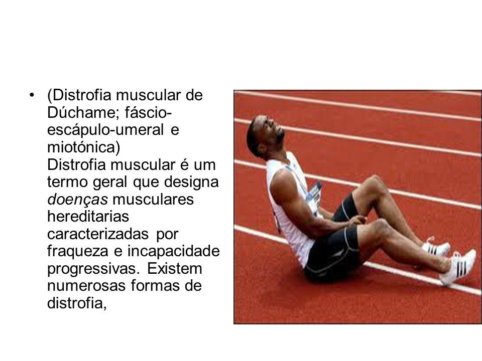 (Distrofia muscular de Dúchame; fáscio- escápulo-umeral e miotónica) Distrofia muscular é um termo geral que designa doenças musculares hereditarias c