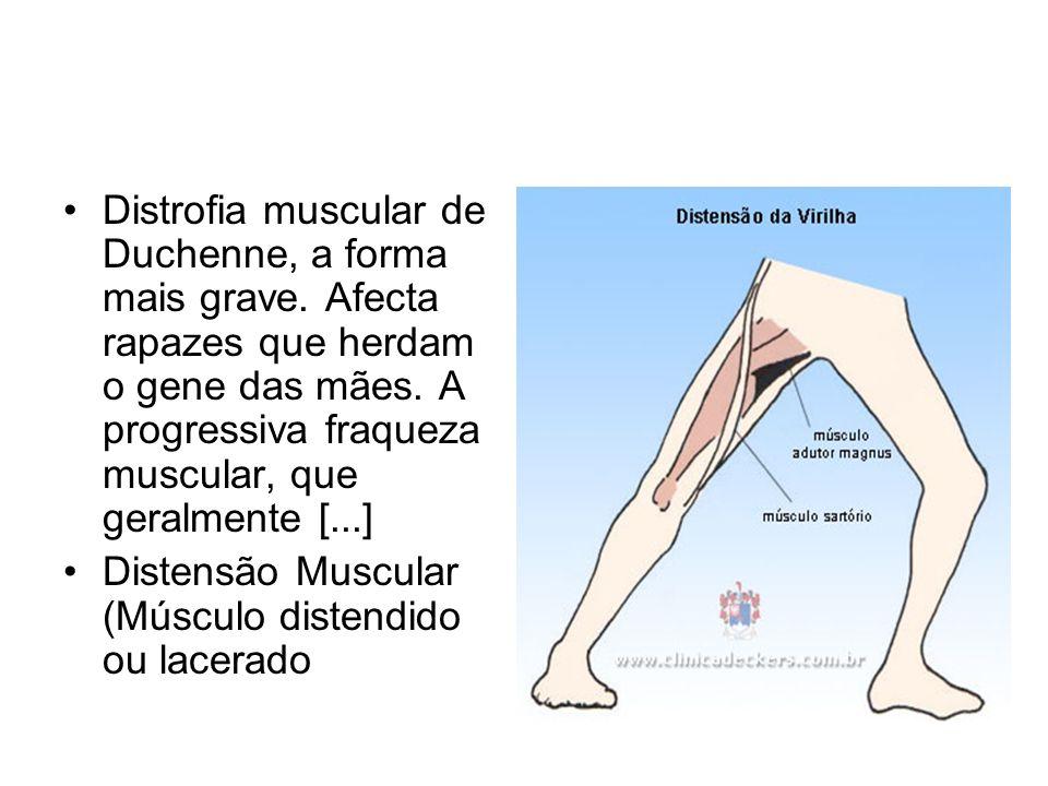 Distrofia muscular de Duchenne, a forma mais grave. Afecta rapazes que herdam o gene das mães. A progressiva fraqueza muscular, que geralmente [...] D