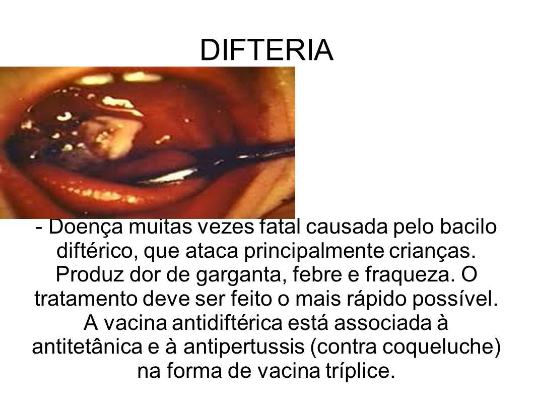 DIFTERIA - Doença muitas vezes fatal causada pelo bacilo diftérico, que ataca principalmente crianças. Produz dor de garganta, febre e fraqueza. O tra
