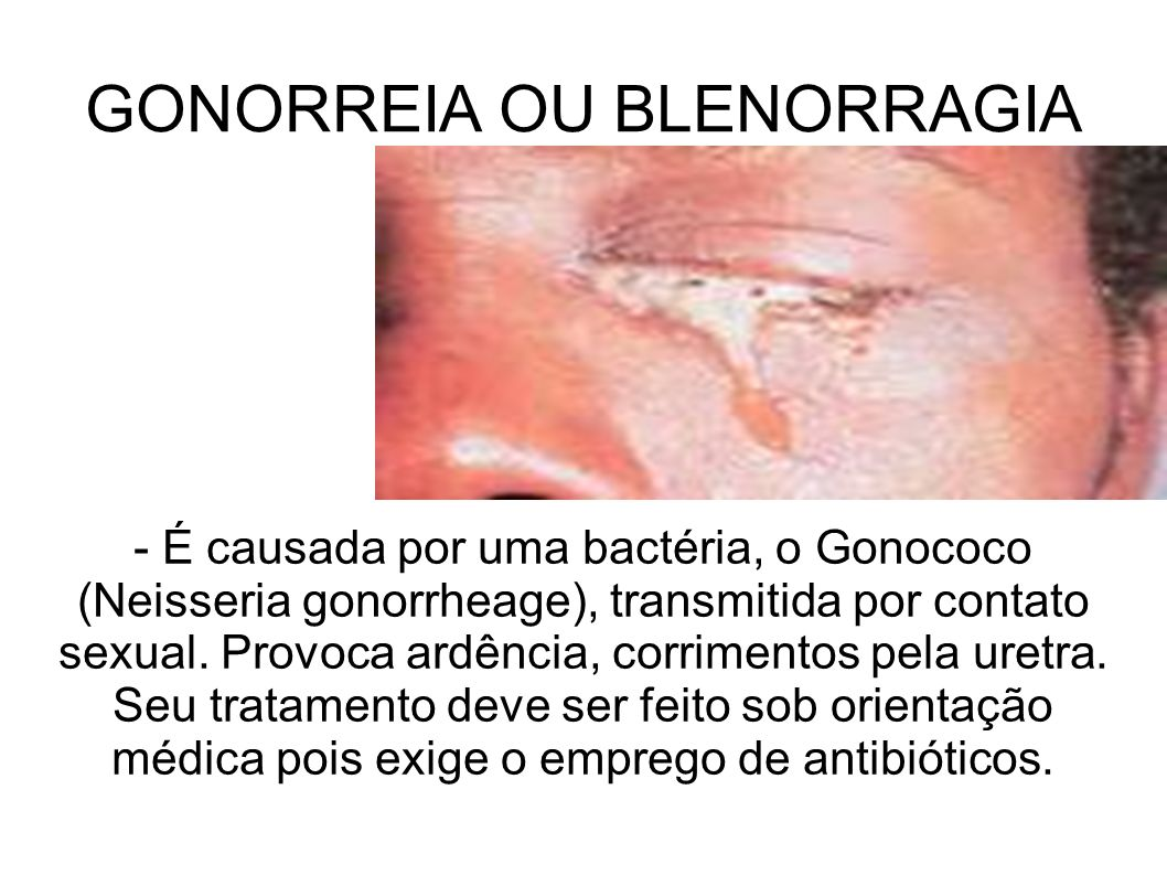 GONORREIA OU BLENORRAGIA - É causada por uma bactéria, o Gonococo (Neisseria gonorrheage), transmitida por contato sexual. Provoca ardência, corriment