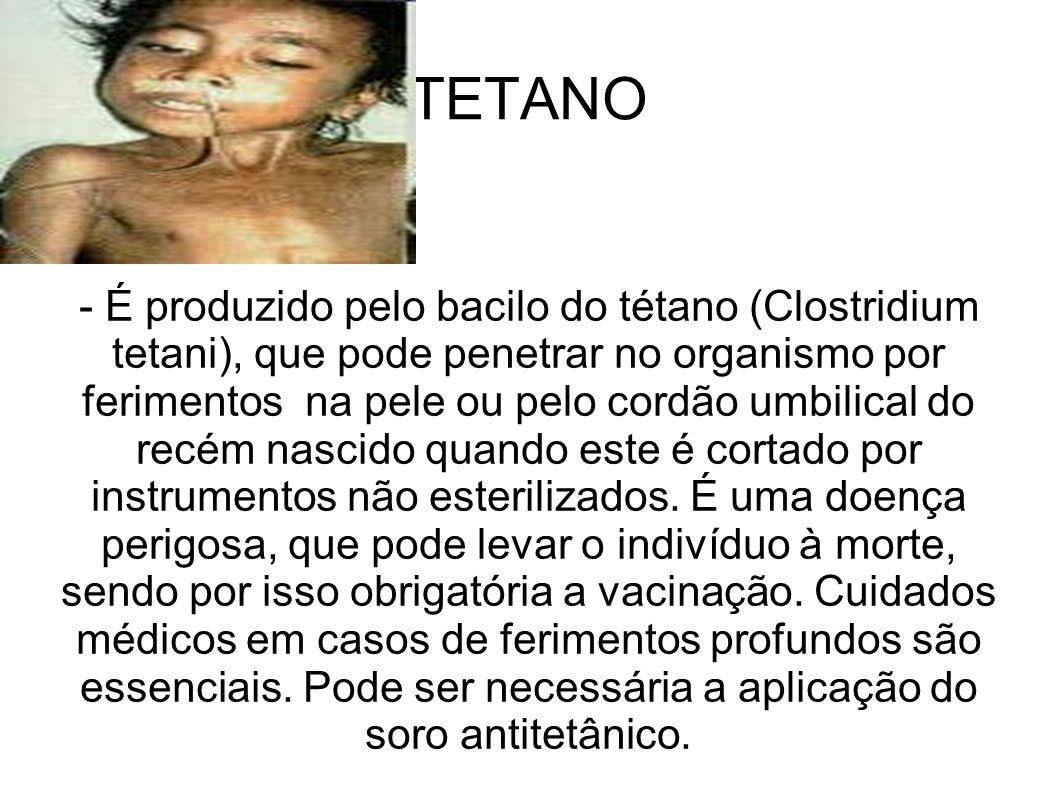 TETANO - É produzido pelo bacilo do tétano (Clostridium tetani), que pode penetrar no organismo por ferimentos na pele ou pelo cordão umbilical do rec