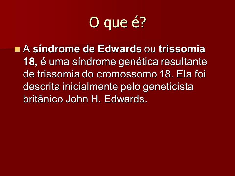 O que é? A síndrome de Edwards ou trissomia 18, é uma síndrome genética resultante de trissomia do cromossomo 18. Ela foi descrita inicialmente pelo g