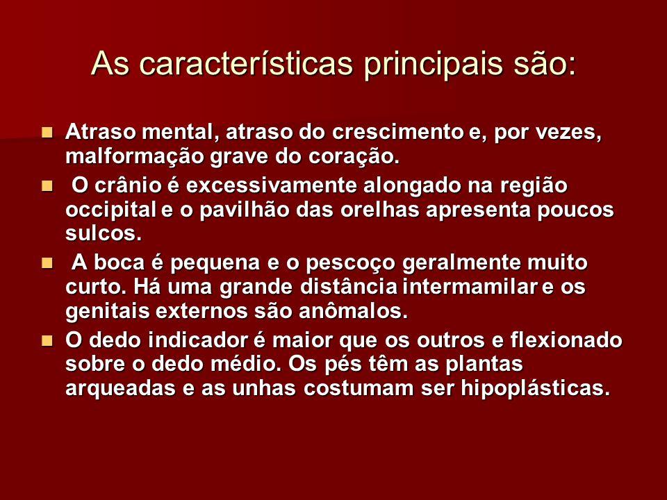 As características principais são: Atraso mental, atraso do crescimento e, por vezes, malformação grave do coração. Atraso mental, atraso do crescimen