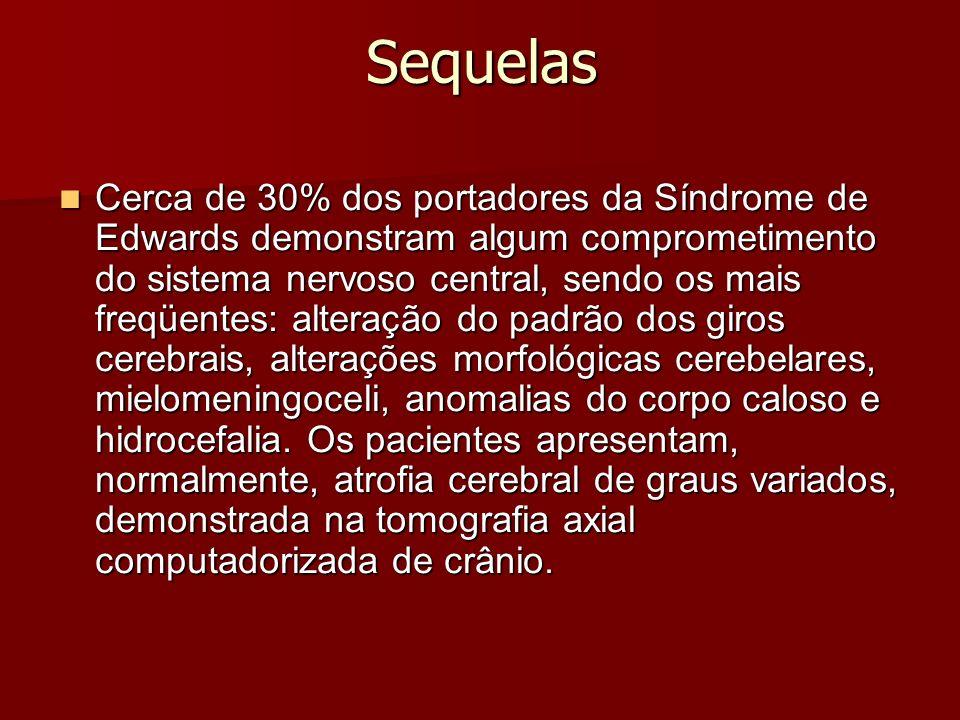 Sequelas Cerca de 30% dos portadores da Síndrome de Edwards demonstram algum comprometimento do sistema nervoso central, sendo os mais freqüentes: alteração do padrão dos giros cerebrais, alterações morfológicas cerebelares, mielomeningoceli, anomalias do corpo caloso e hidrocefalia.