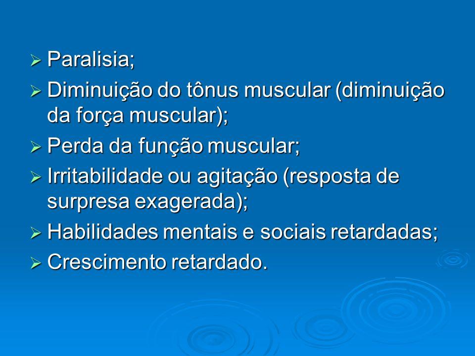 Paralisia; Paralisia; Diminuição do tônus muscular (diminuição da força muscular); Diminuição do tônus muscular (diminuição da força muscular); Perda
