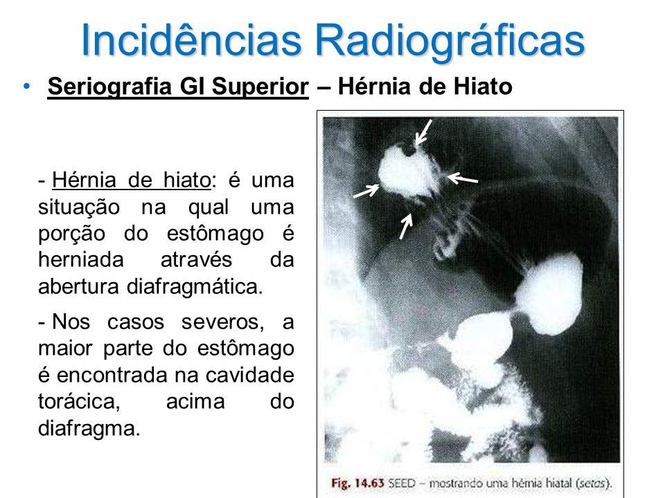 Incidências Radiográficas Seriografia GI Superior – Hérnia de Hiato - Hérnia de hiato: é uma situação na qual uma porção do estômago é herniada atravé