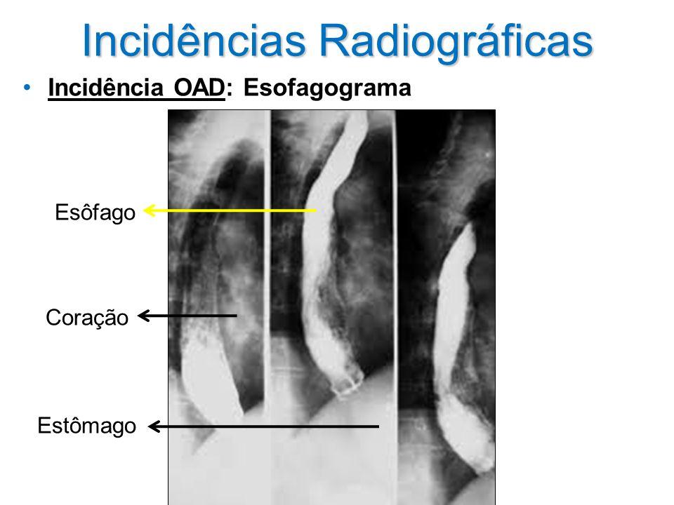 Incidências Radiográficas Incidência OAD: Esofagograma Coração Esôfago Estômago