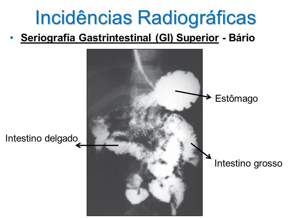 Incidências Radiográficas Seriografia GastrintestinaI (GI) Superior - Bário Estômago Intestino delgado Intestino grosso