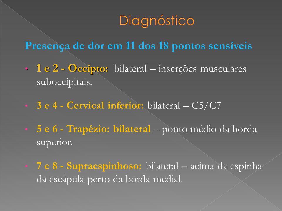 Presença de dor em 11 dos 18 pontos sensíveis 1 e 2 - O ccipto: 1 e 2 - O ccipto: bilateral – inserções musculares suboccipitais. 3 e 4 - Cervical inf