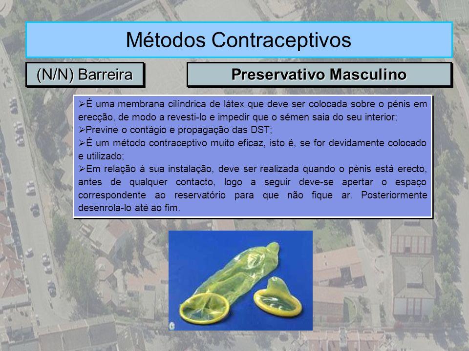 (N/N) Barreira Métodos Contraceptivos Preservativo Masculino É uma membrana cilíndrica de látex que deve ser colocada sobre o pénis em erecção, de mod