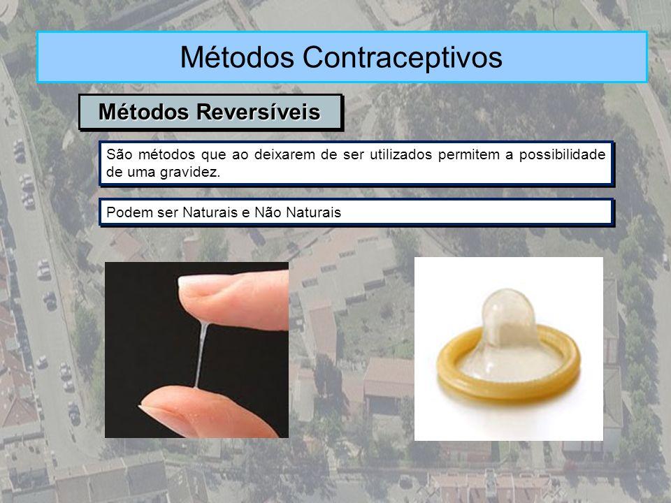 Métodos Reversíveis Métodos Contraceptivos São métodos que ao deixarem de ser utilizados permitem a possibilidade de uma gravidez. Podem ser Naturais