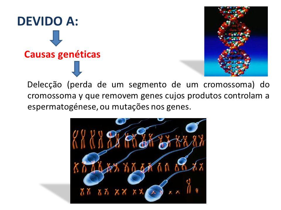 DEVIDO A: Causas genéticas Delecção (perda de um segmento de um cromossoma) do cromossoma y que removem genes cujos produtos controlam a espermatogéne
