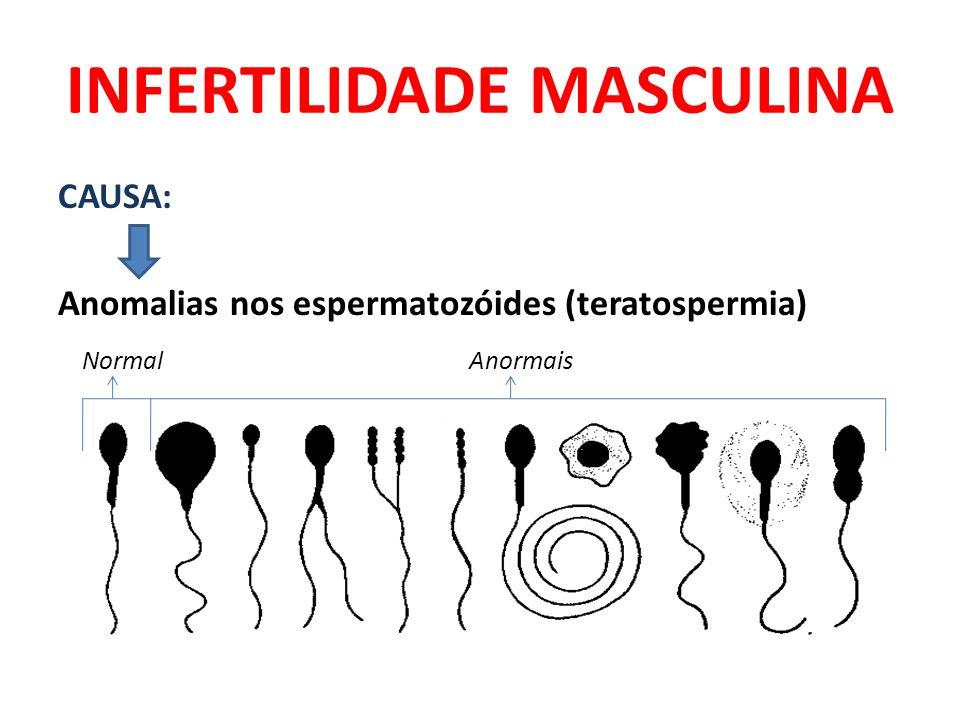 INFERTILIDADE MASCULINA CAUSA: Anomalias nos espermatozóides (teratospermia) Normal Anormais